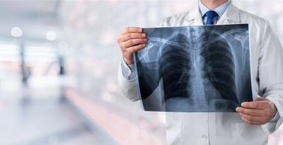 ¿El cáncer de pulmón es hereditario? Entérate aquí