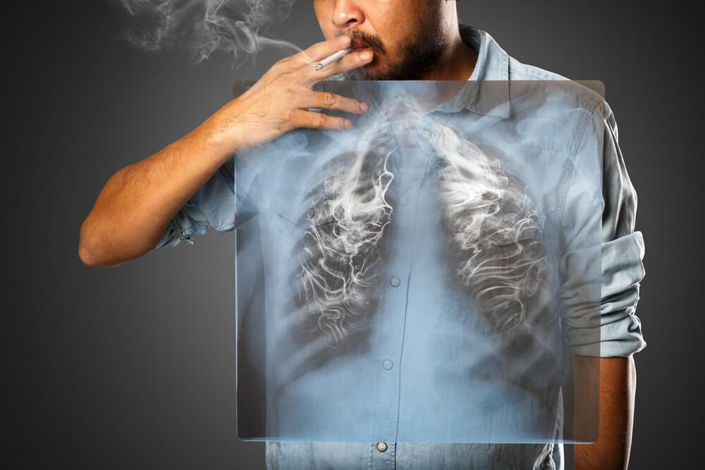 Cáncer al pulmón en Perú y tratamientos