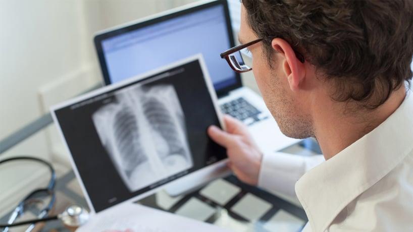 Doctor revisando rayos x