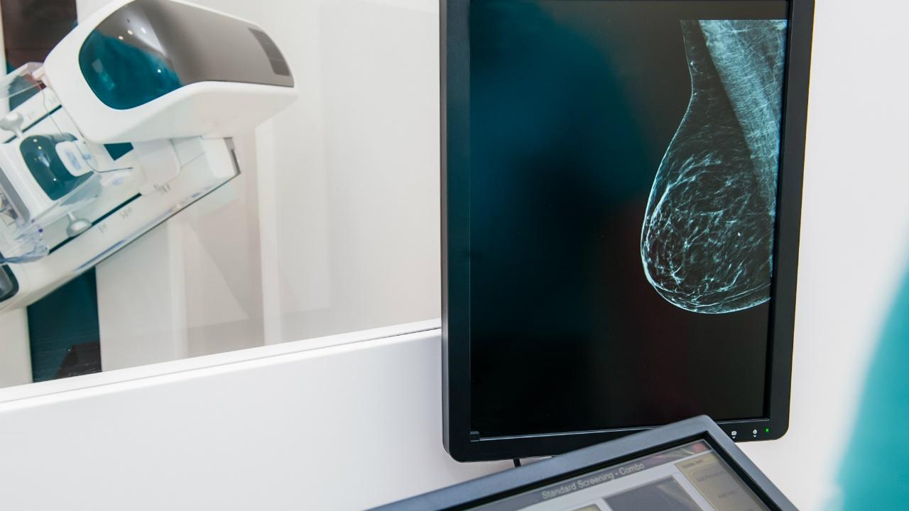 la mamografia duele