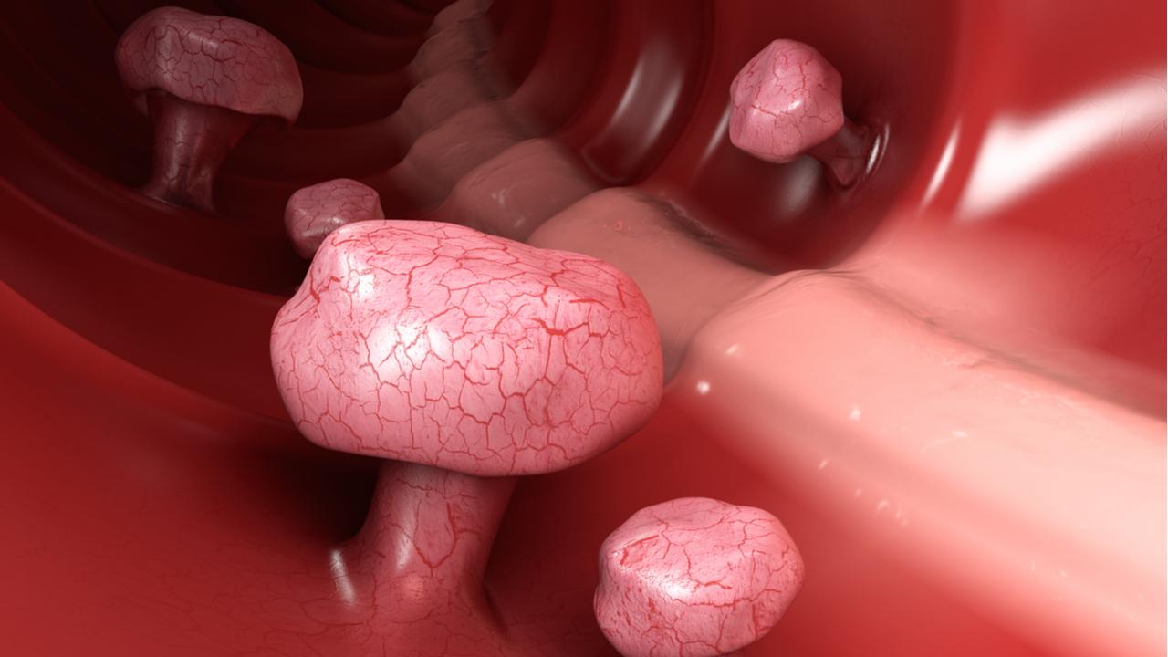Cáncer-de-colon-Tipos-síntomas-factores-de-riesgo-y-prevención-2