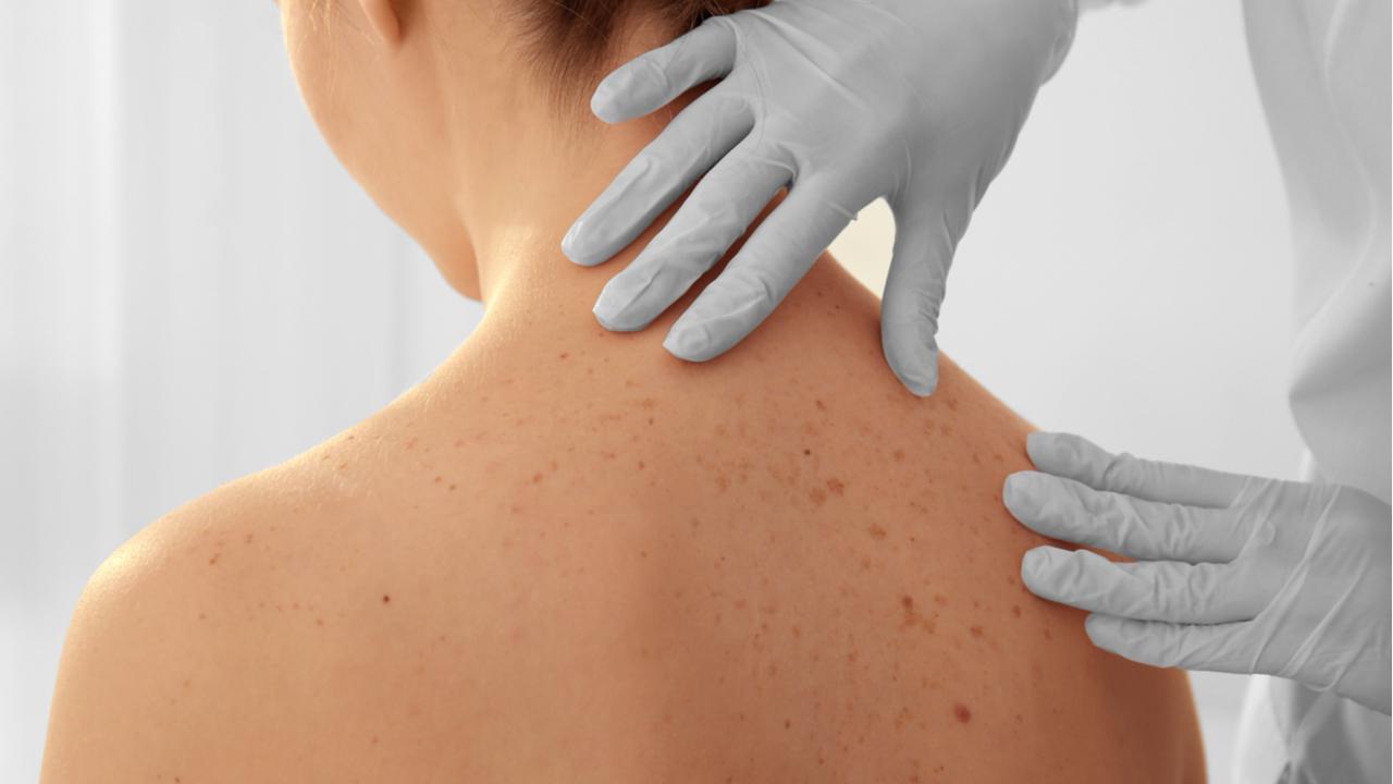 medico tocando la piel de una mujer llena de lunares