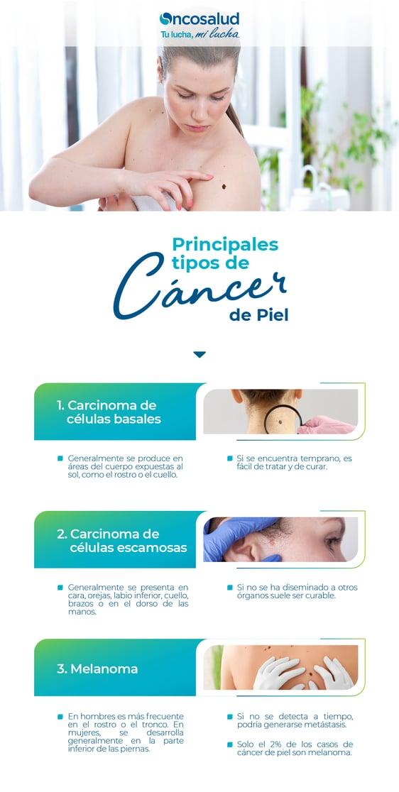 principales tipos de cancer de piel