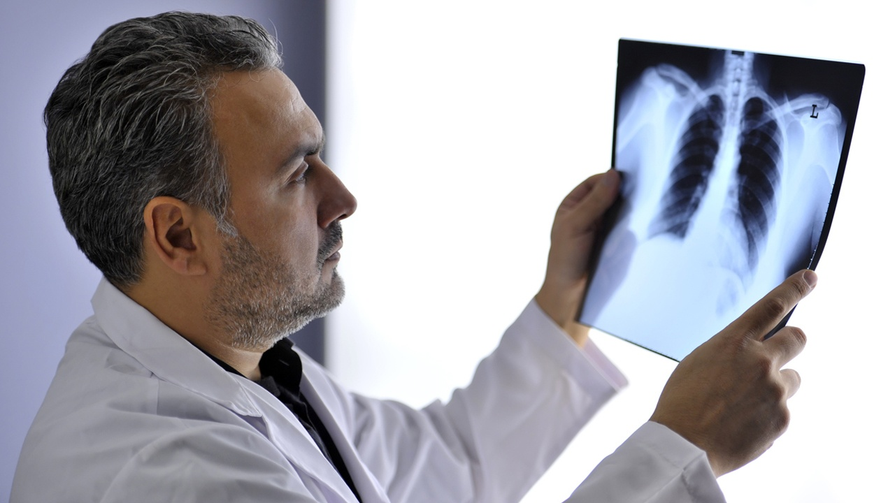 tipos-cancer-produce-tabaco-cancer-pulmon.jpg