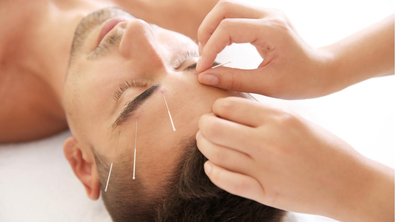 hombre tratamiento con acupuntura