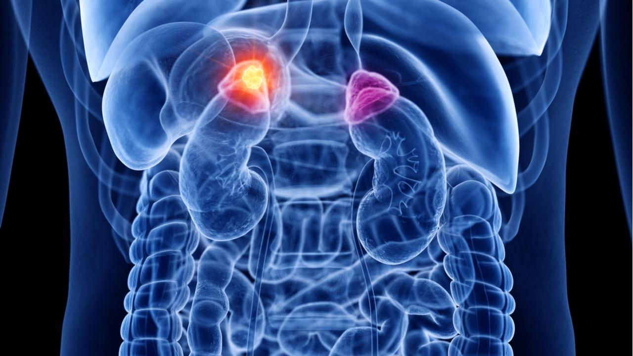 como se expande el cancer en el cuerpo