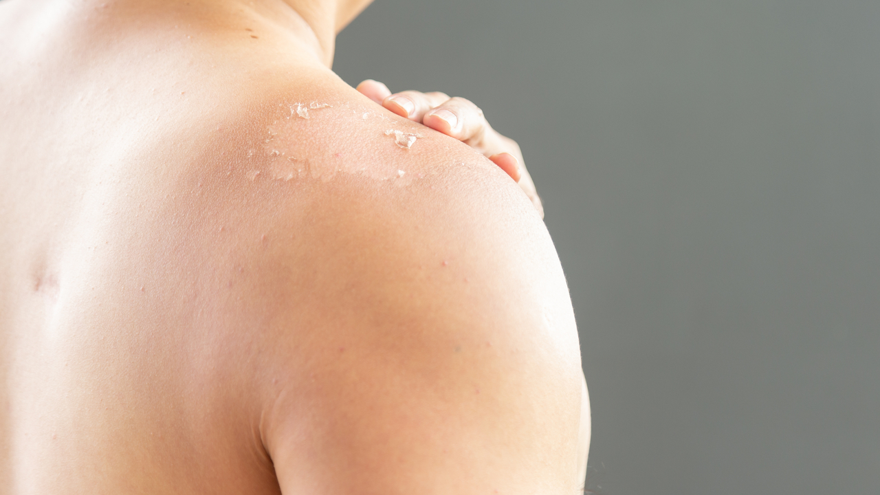piel de la espalda de una mujer pelandose