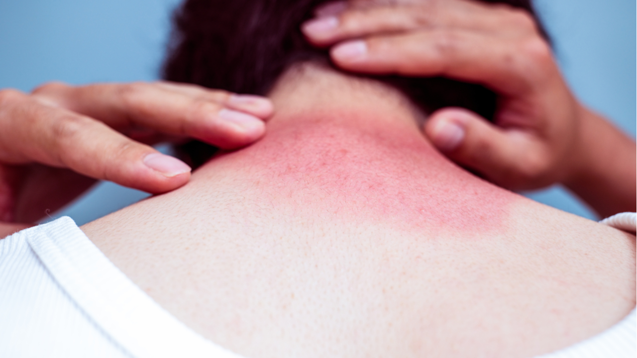 hombre con quemadura solar en su cuello