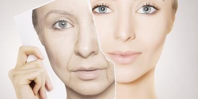 Sol y arrugas: ¿cuál es la relación y cómo protegerse?
