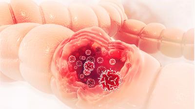 Qué es el examen de Thevenon y detección temprana del cáncer de colon