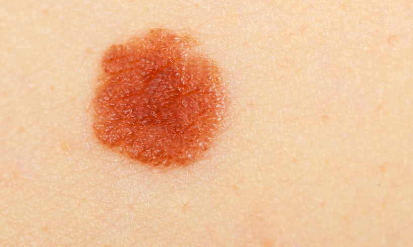 signos-del-cancer-de-piel-tipo-melanoma.png