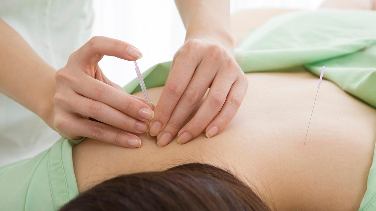 terapias-cancer-acupuntura.jpg