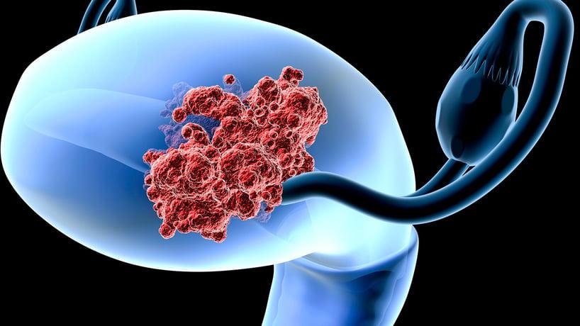 cuello uterino con tumores