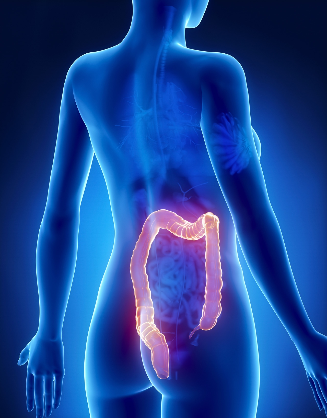 cancer-de-colon-sintomas.jpg