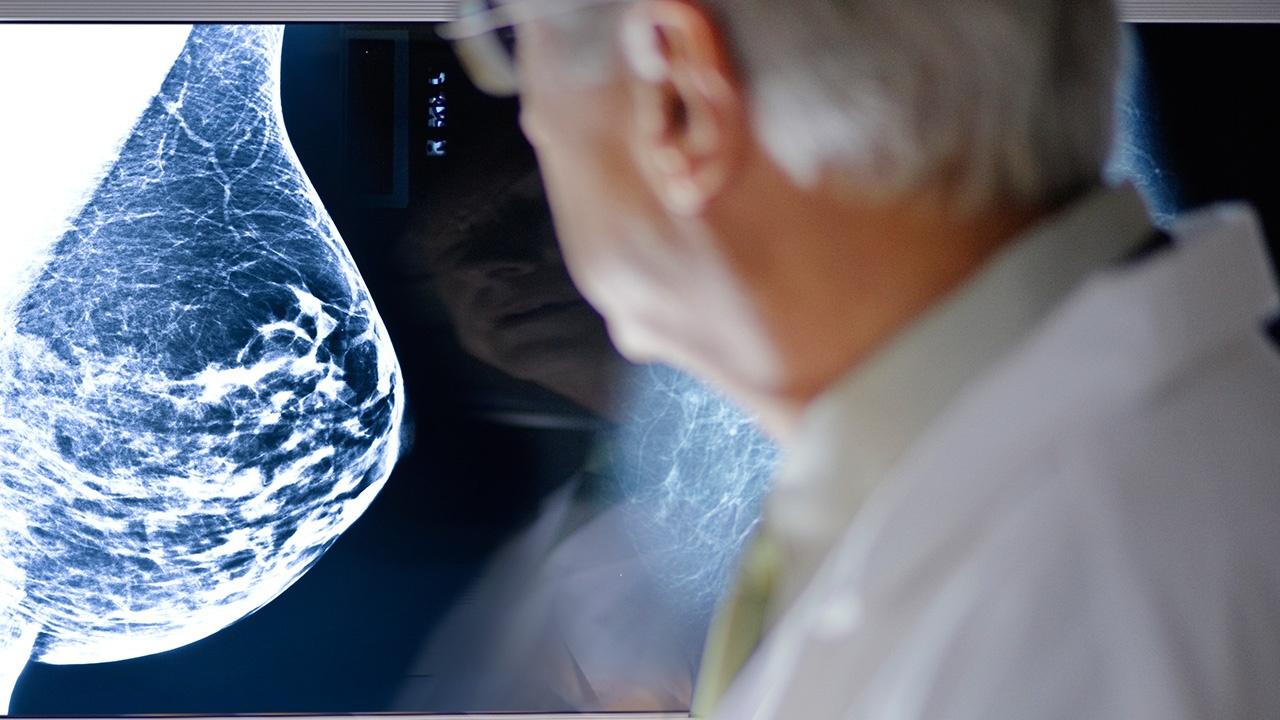 cancer-de-mama-sintomas.jpg