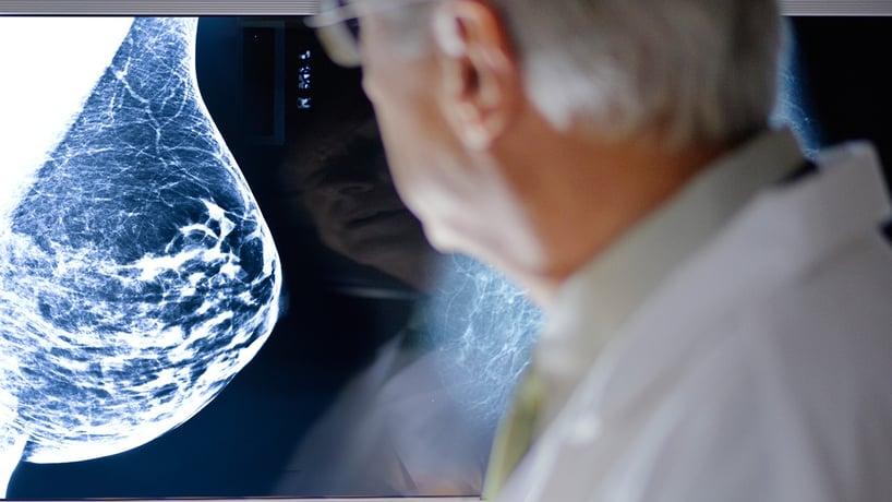 doctor examinando radiografia de una mama