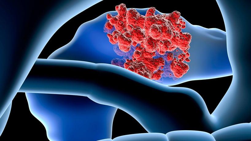 cancer-pancreas-interno.jpg