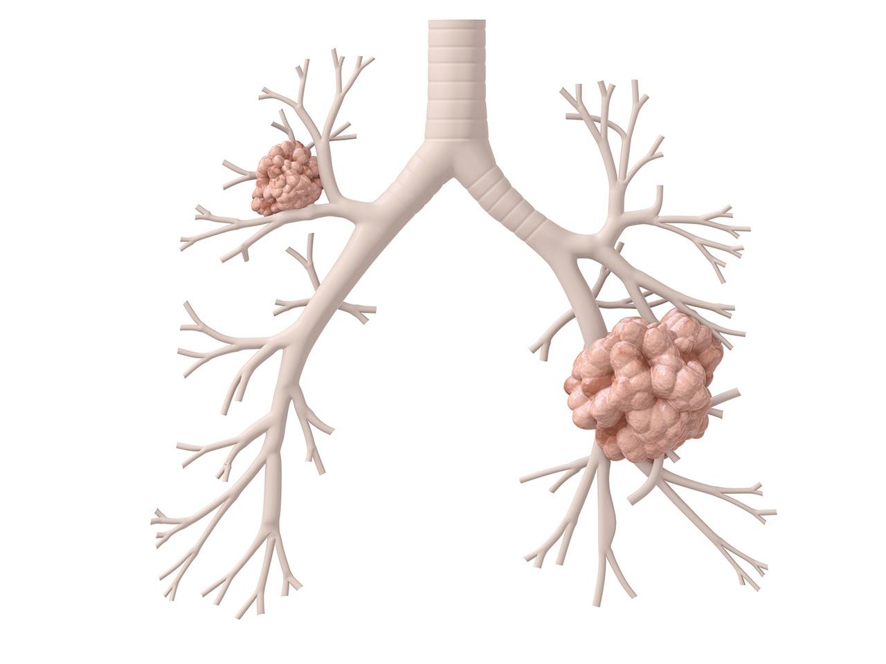 pulmon-interno-oncosalud.jpg