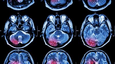 Cáncer de cerebro: Causas, signos, tipos y terapias disponibles