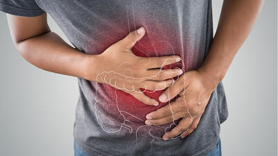 Cáncer de colon: qué es, cómo se detecta y cómo prevenirlo