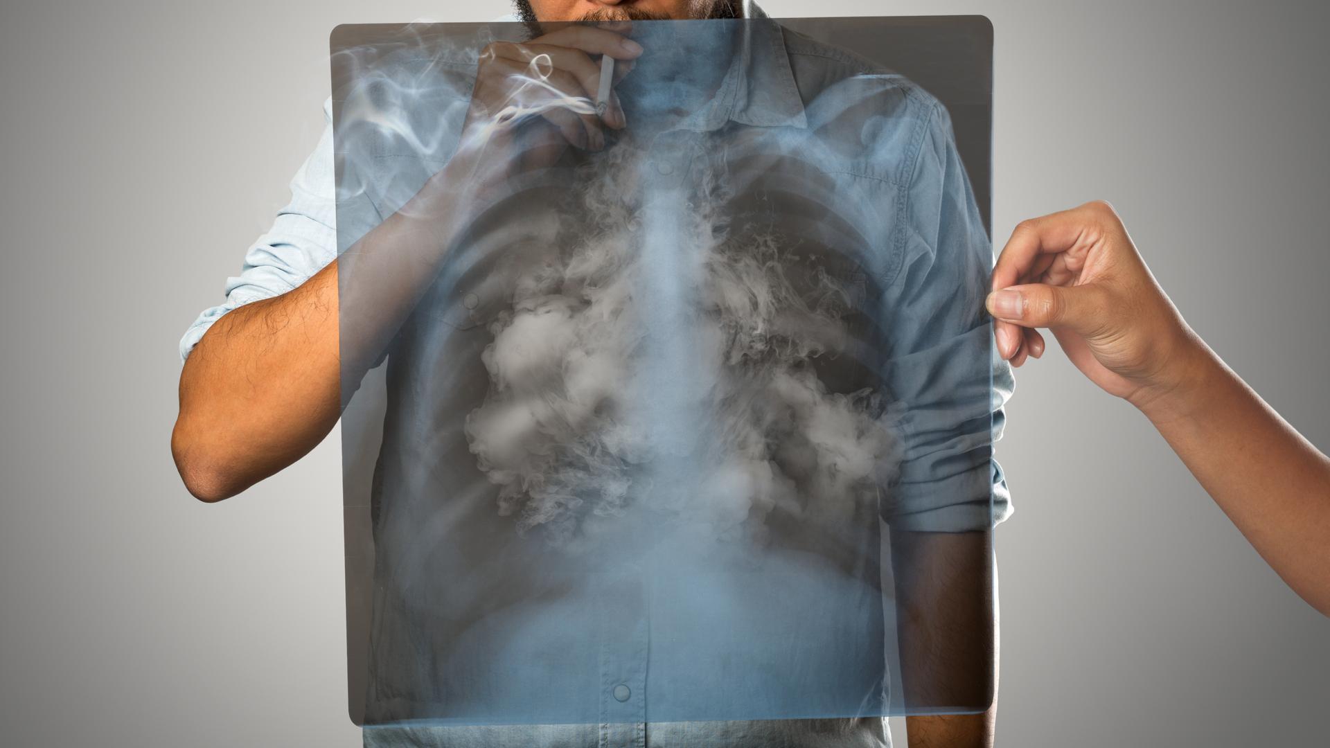 cigarro y cancer de pulmon