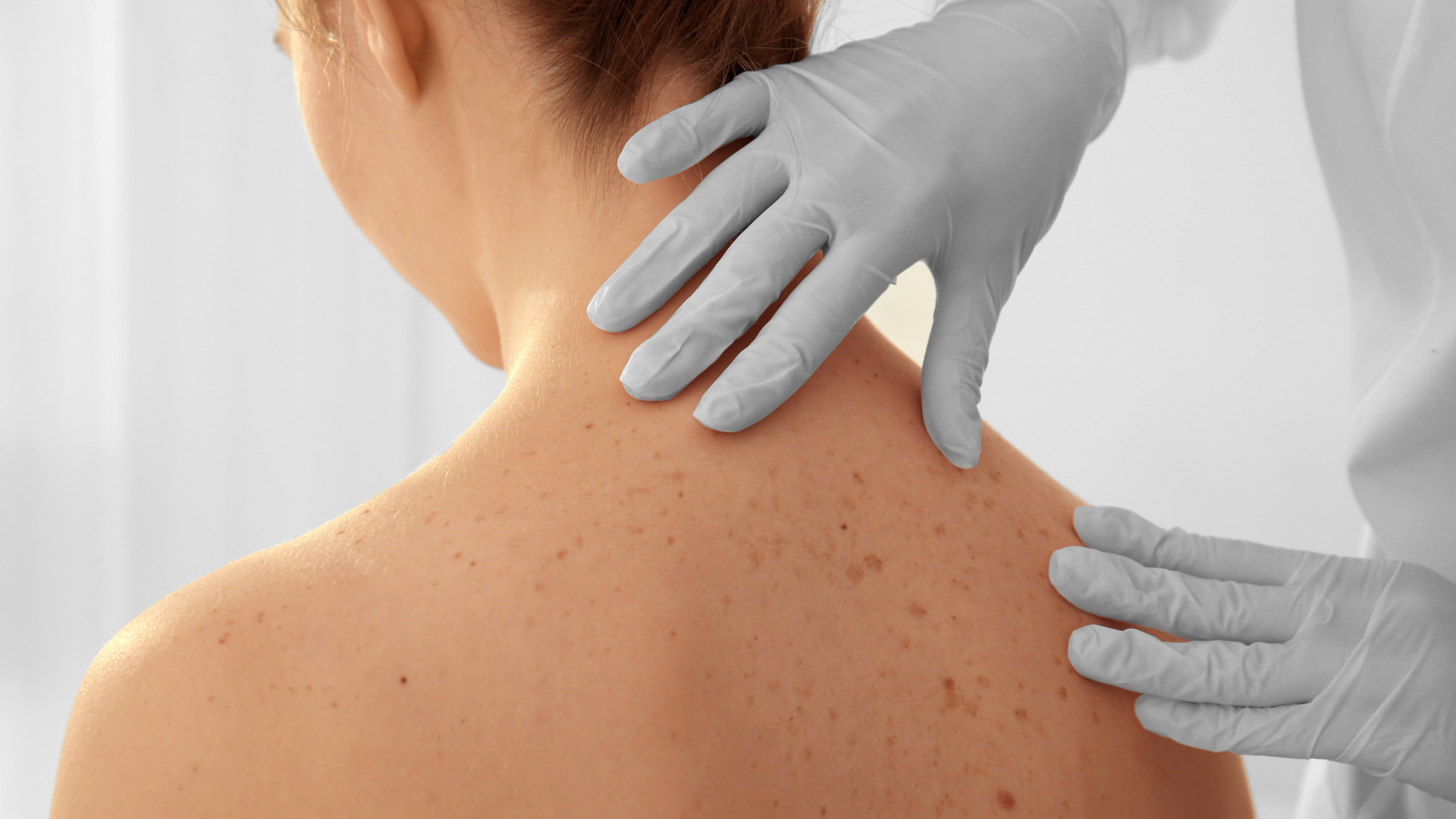 despistaje cancer de piel