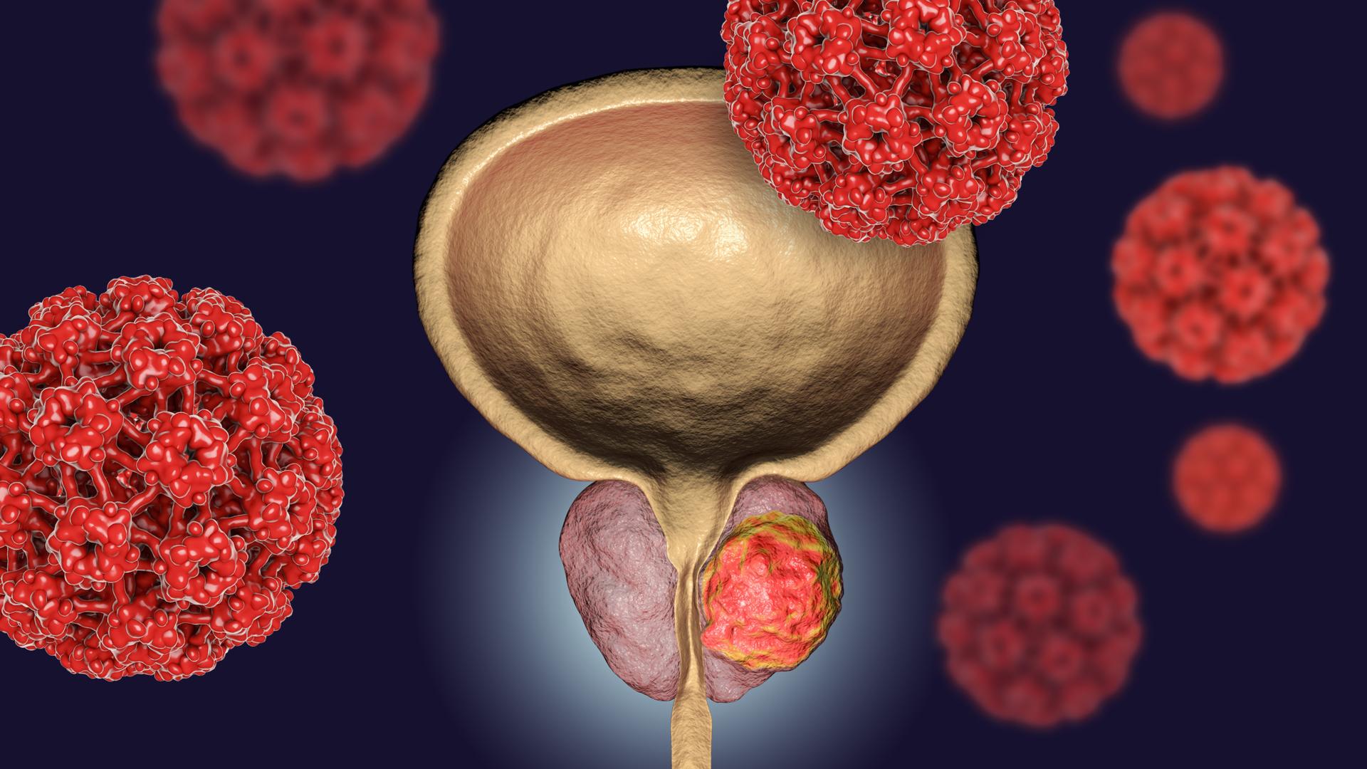 detectar el cancer de prostata