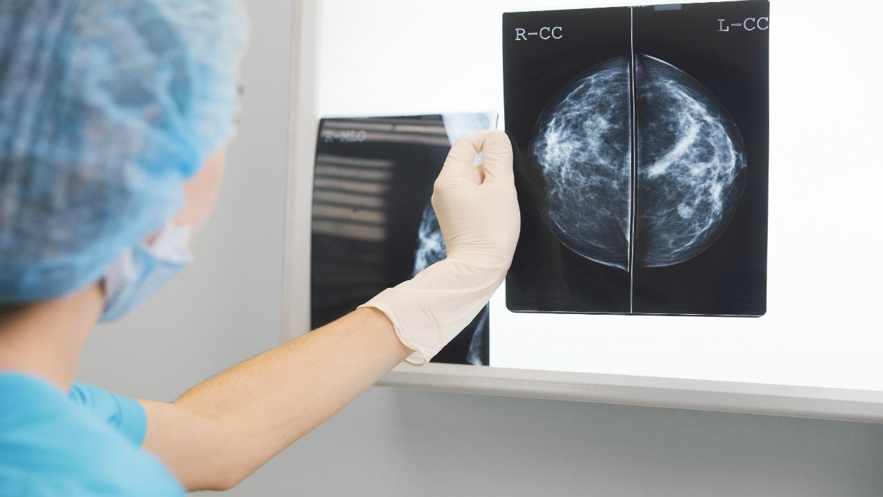 ecografia-de-mamas-tipos-de-examen