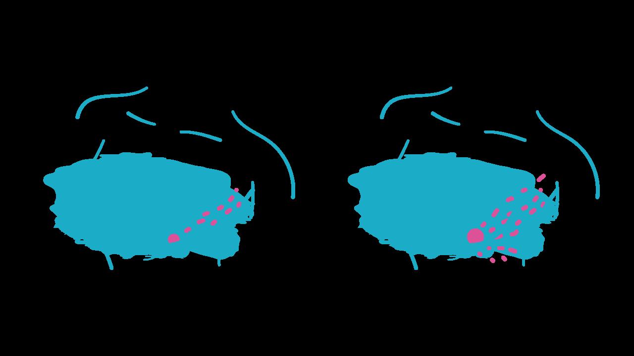 estadio 2-3 cancer de mama