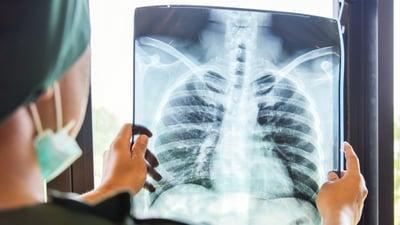 Las etapas del cáncer de pulmón definen el tratamiento del paciente