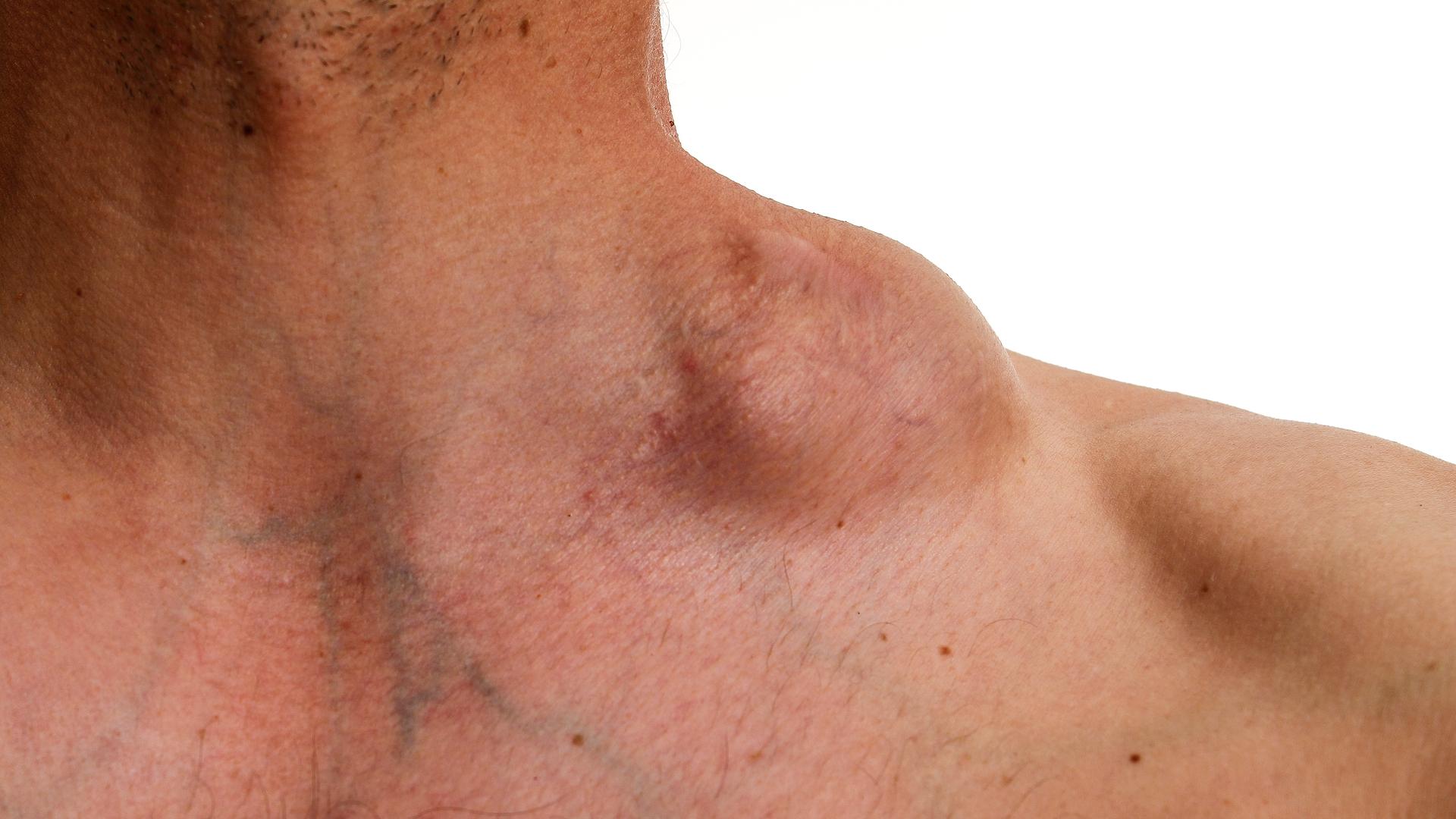 linfoma de hodgkin sintomas