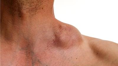 ¿Cuáles son los síntomas del cáncer linfático?