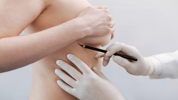 mastectomia-por-cancer-de-mama-antes-de-reconstruccion-mamaria