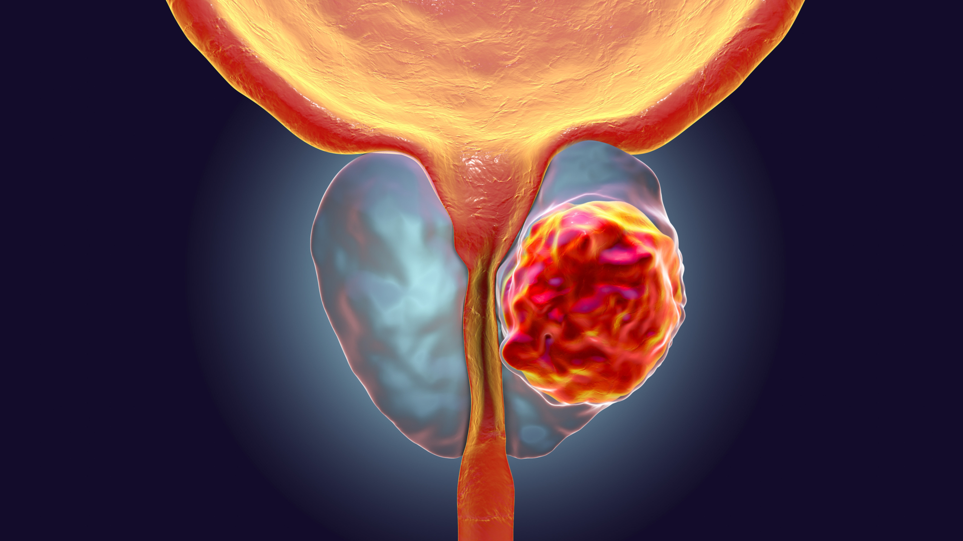 mitos del cancer de prostata