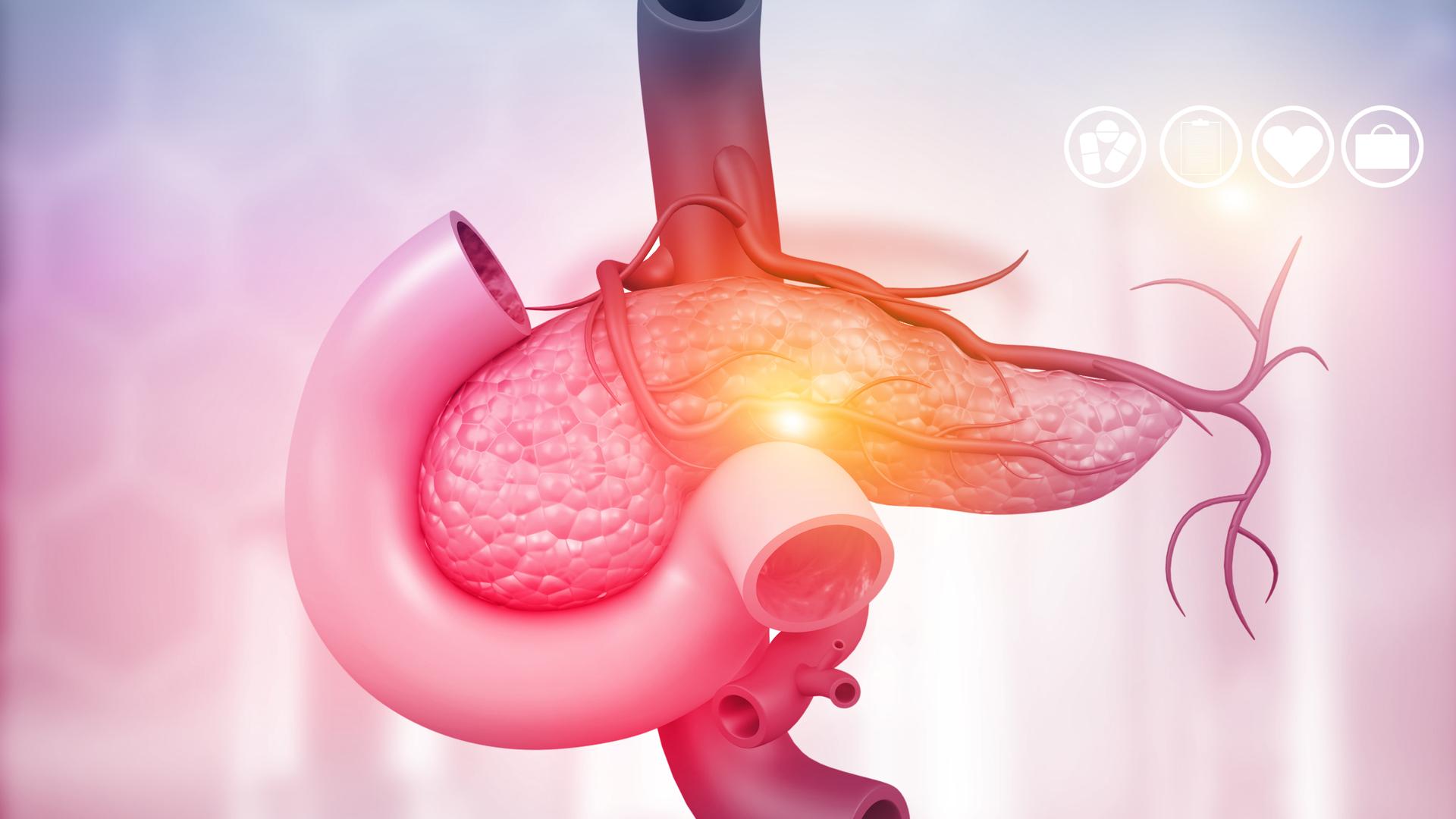 pancreas factores de riesgo