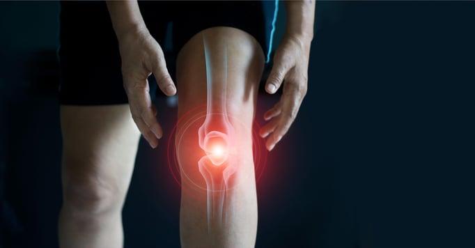 ¿Por qué suenan las rodillas? 4 señales que indican una lesión