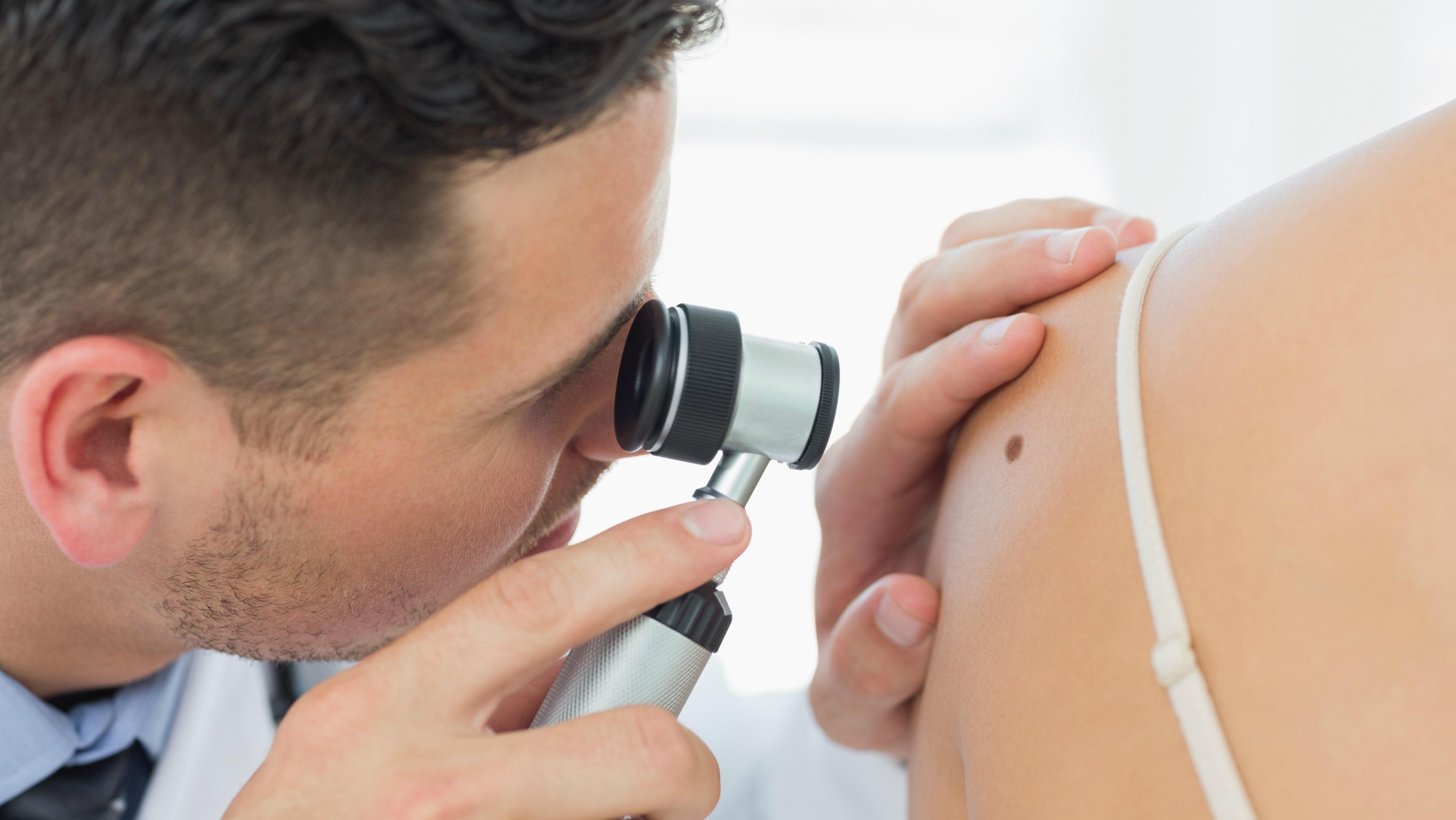 prevenir-el-cancer-de-piel-178428761