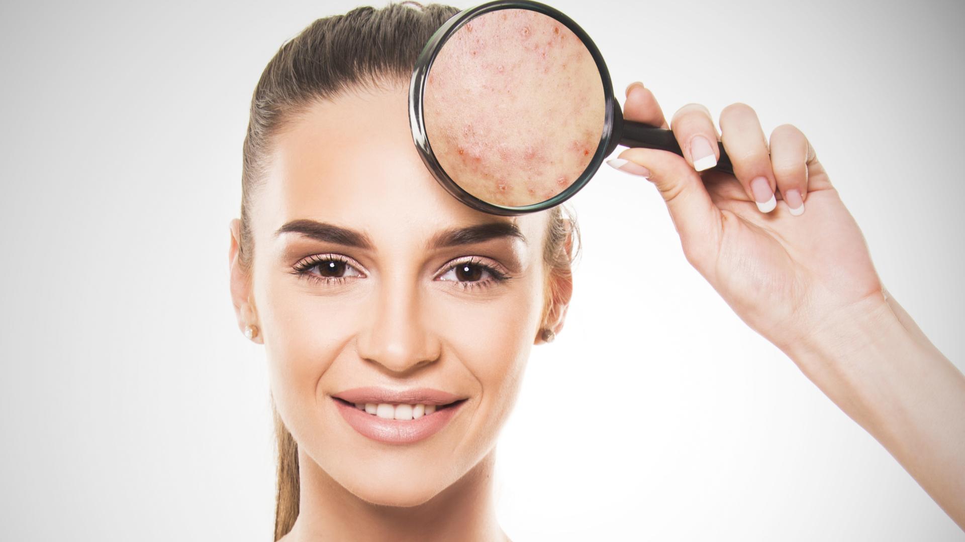 problemas de piel en limenos