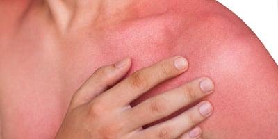 Quemaduras solares: ¿aumentan el riesgo de cáncer?