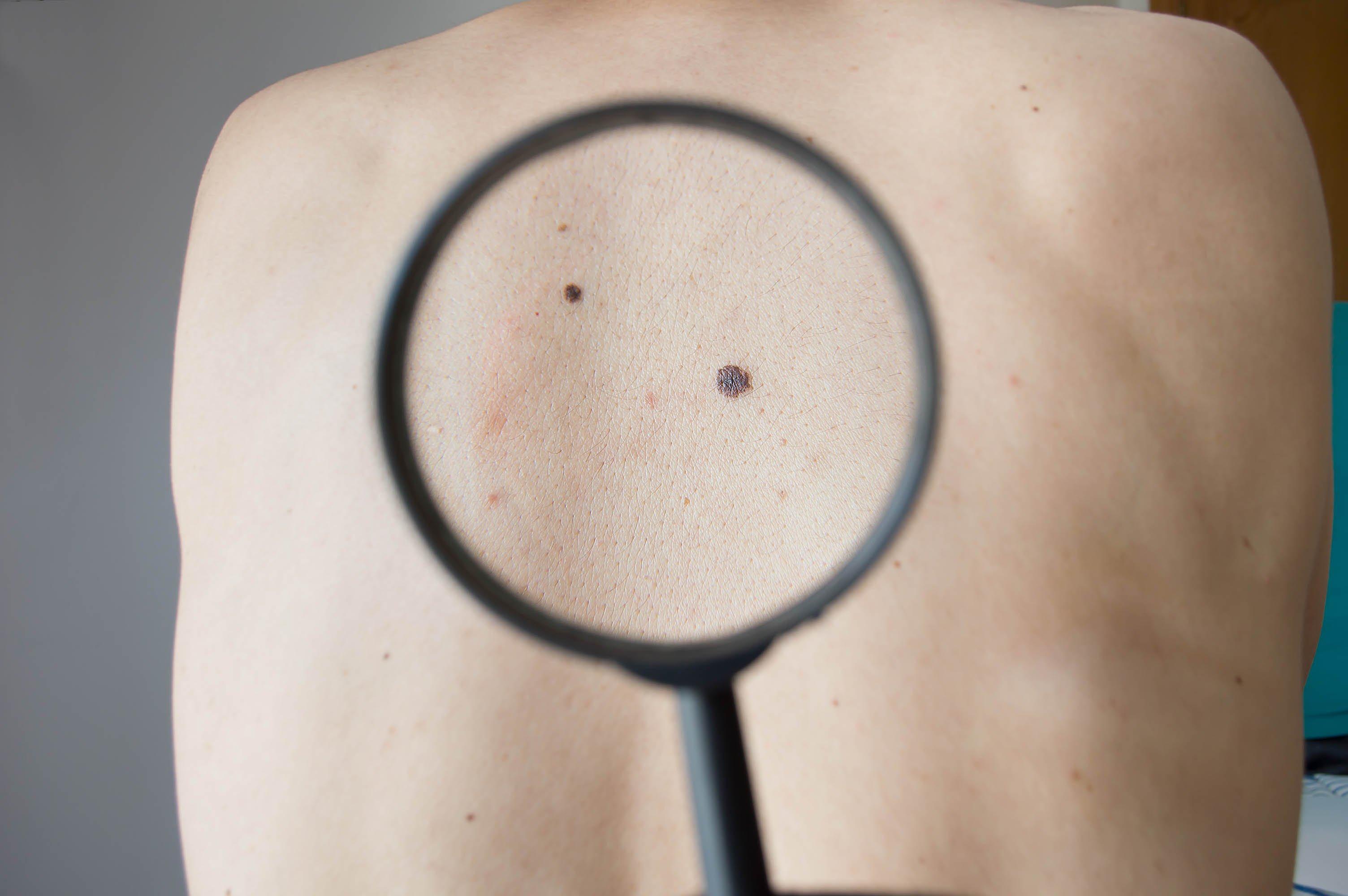 revisar la piel