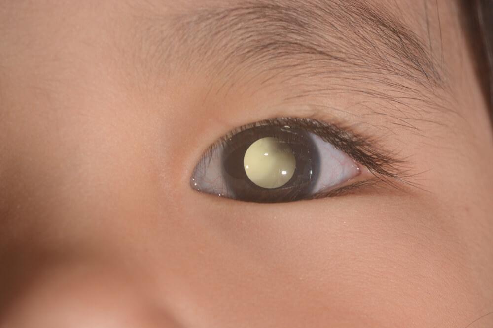 Retinoblastoma en niños