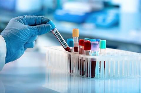 ¿Por qué son necesarias las pruebas de salud preventiva?