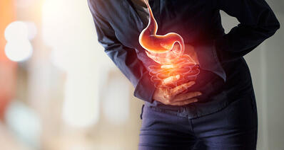Conoce todo de la cobertura de Oncovital para cáncer de colon
