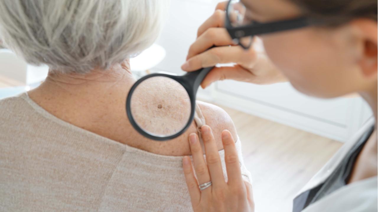 despistaje-de-cancer-de-piel