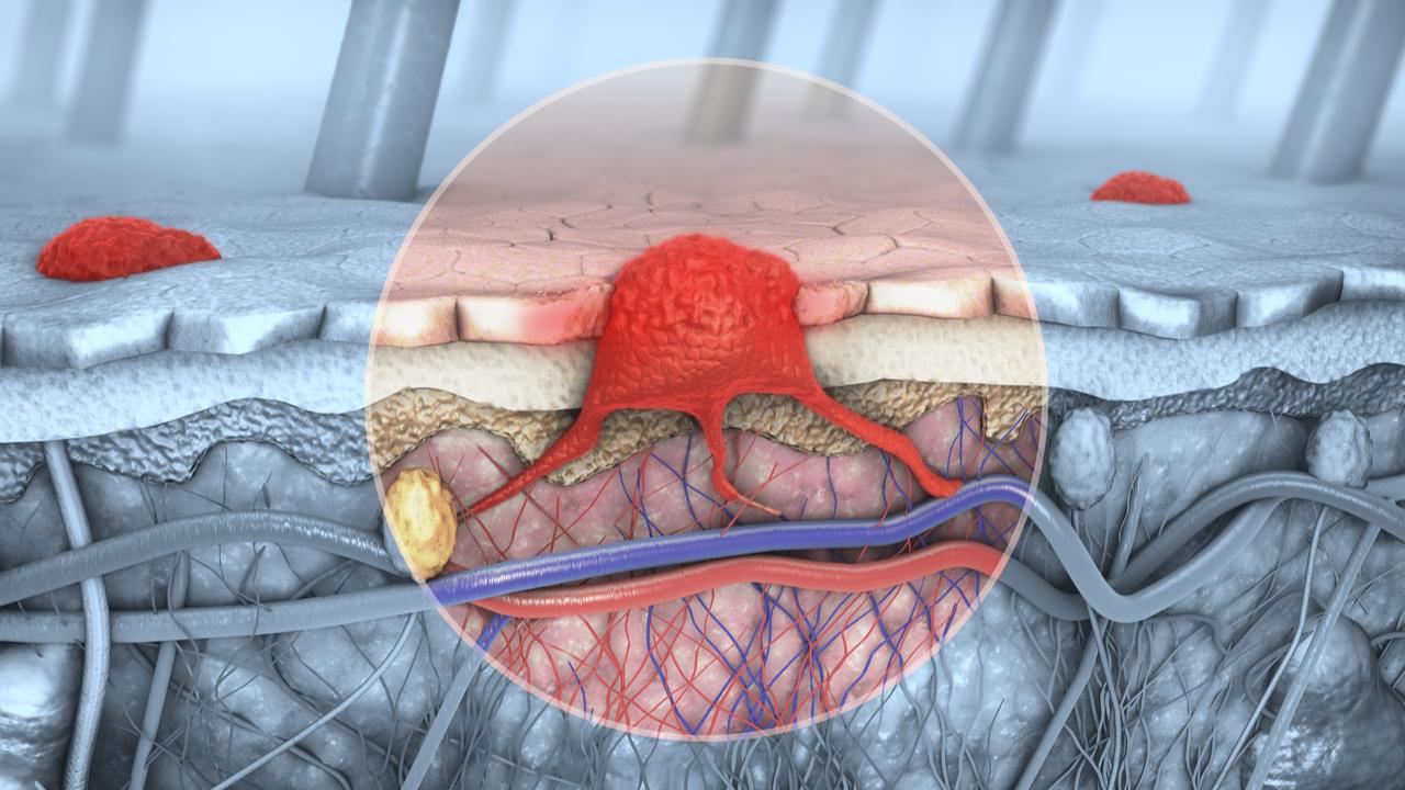 sintomas-del-cancer-linfatico