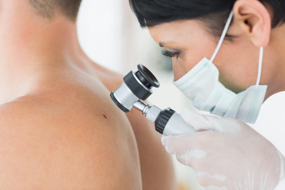 incidencia cancer de piel