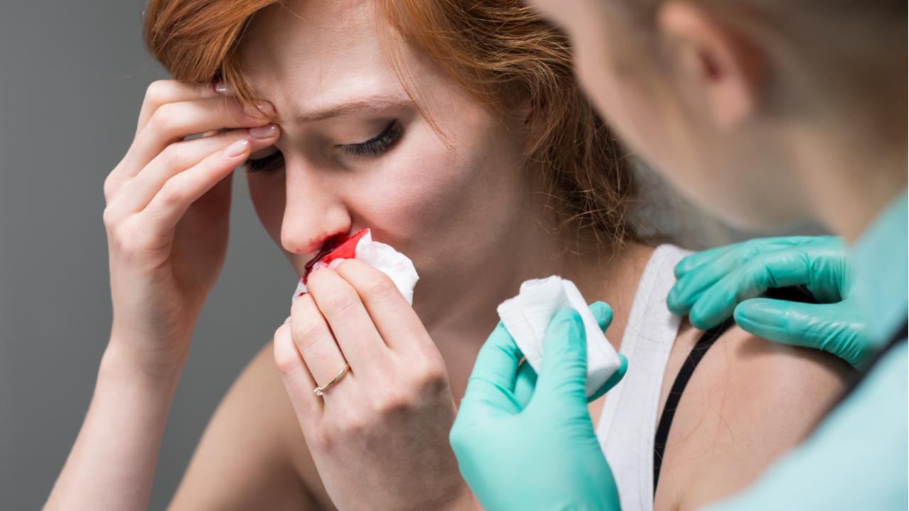 mujer con hemorragia nasal