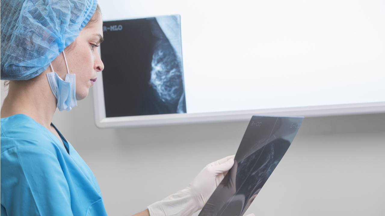 tipos-de-cancer-de-mama