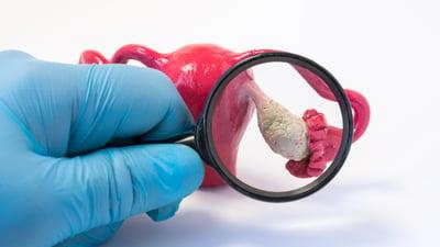 Estos son los dos pasos a seguir para detectar el cáncer de ovario a tiempo