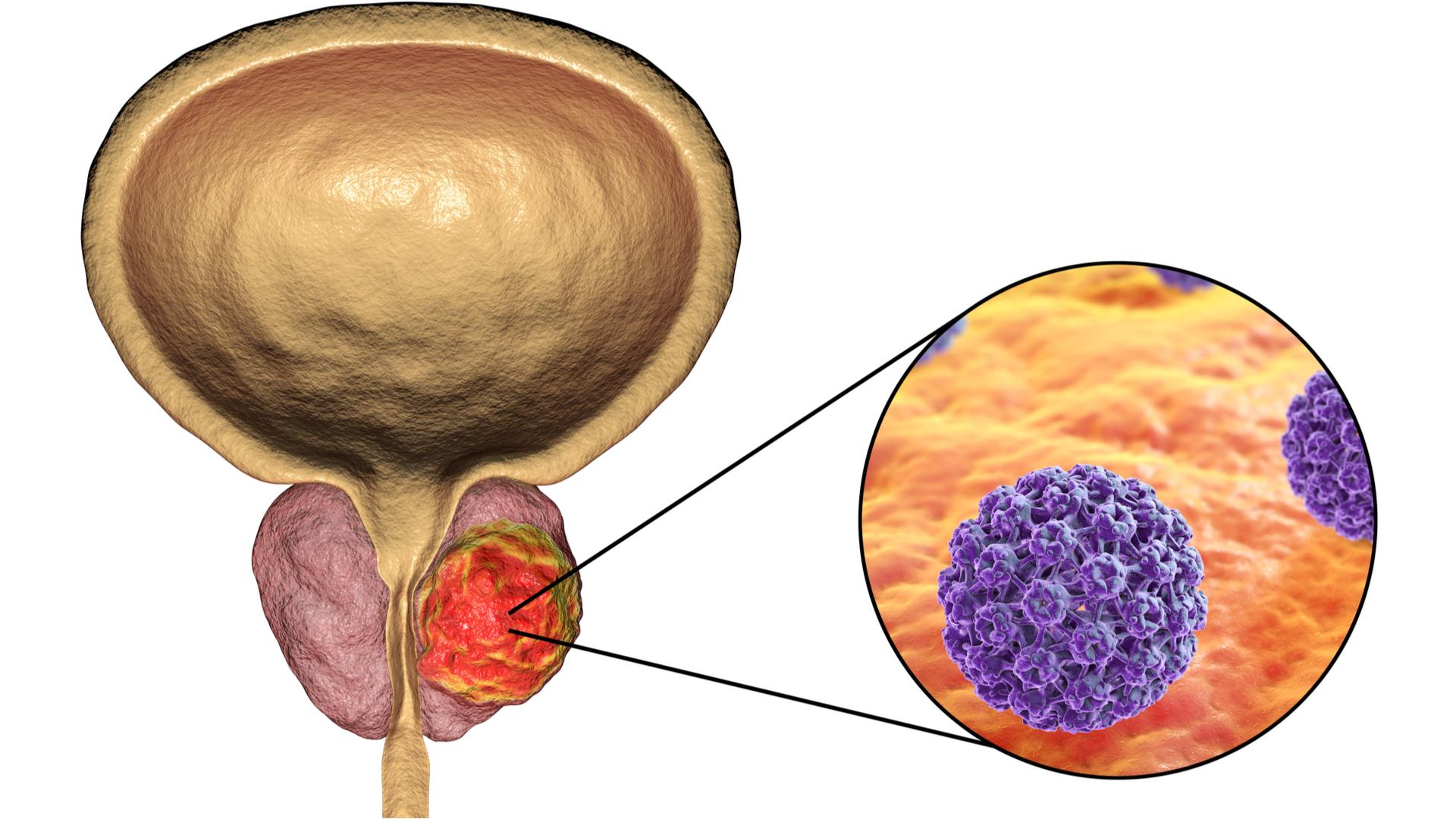 sintomas del cancer de prostata